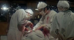 MASH surgery